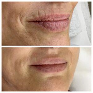 aumento-de-labios-antes-y-despues-3-300x300
