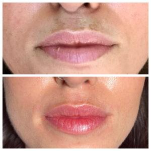 aumento-de-labios-antes-y-despues-4-300x300