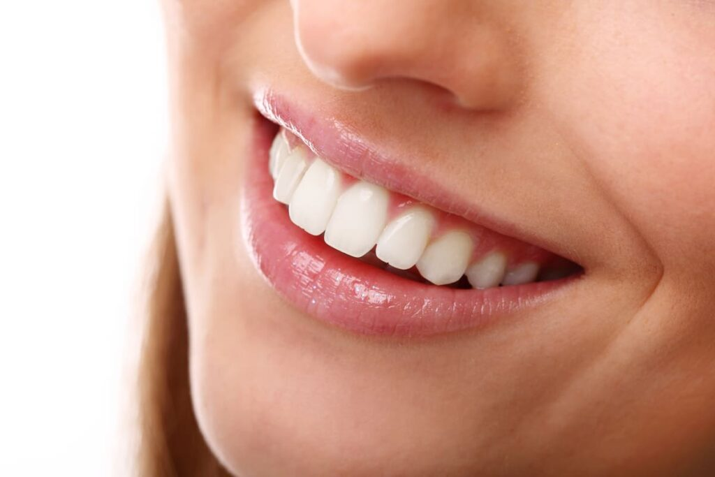 sonrisa gingival botox